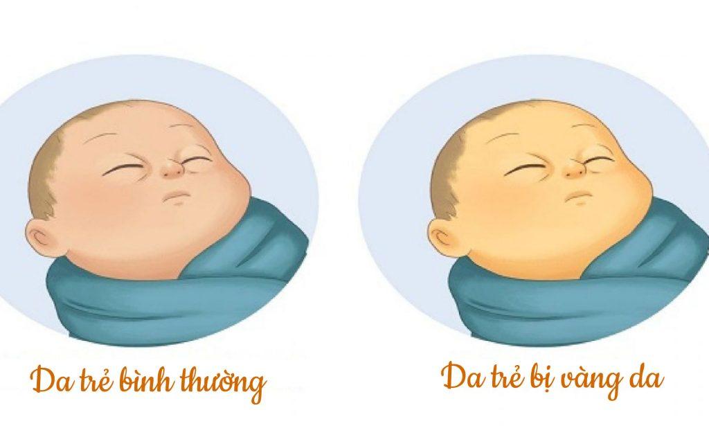 hien-tuong-vang-da-o-tre-so-sinh-va-nhung-dieu-bo-me-nen-biet-2