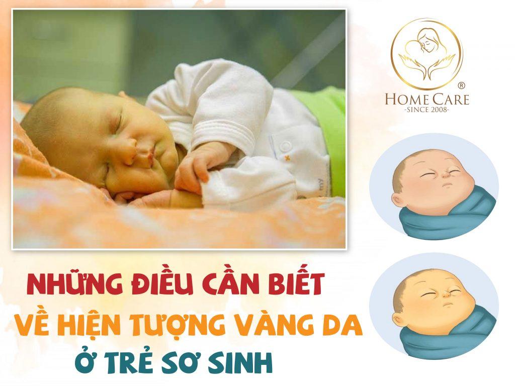 hien-tuong-vang-da-o-tre-so-sinh-va-nhung-dieu-bo-me-nen-biet-1