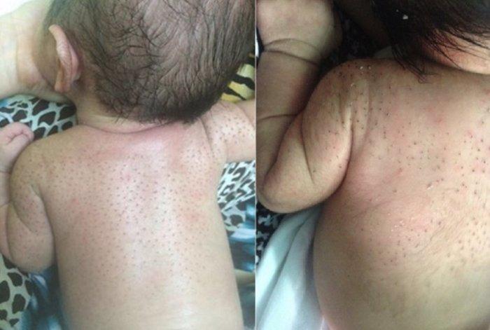 tắm lá gì cho trẻ sơ sinh rụng lông